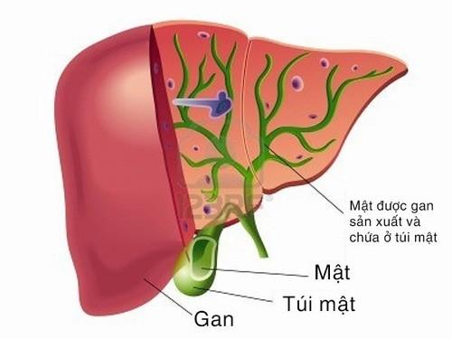 Bệnh sỏi đường mật trong gan nguy hiểm đến mức nào?